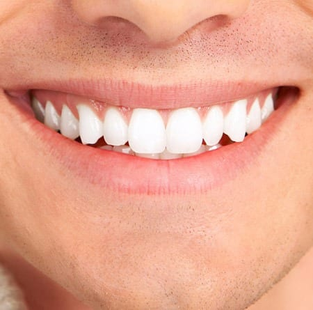 5 Steps to a Healthy Mouth